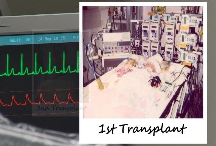 Sandeen underwent her first heart transplant when she was just 8 years old